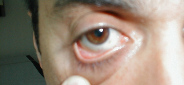 Is it true that you may have anemia if a black line(s) appears on your cheek when you rub your face with a clean, pure gold ring for about 30 seconds? -